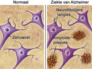 Afbeeldingsresultaat voor neurofibrillaire tangles of knopen